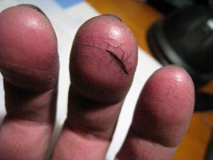 Проблема трещин на коже пальцев рук