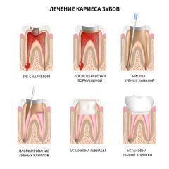 Лечение кариеса зубов пломбой